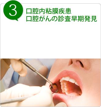 口腔内粘膜疾患、口腔がんの診査早期発見